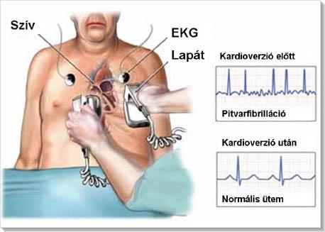 szívritmuszavar elleni gyógyszer